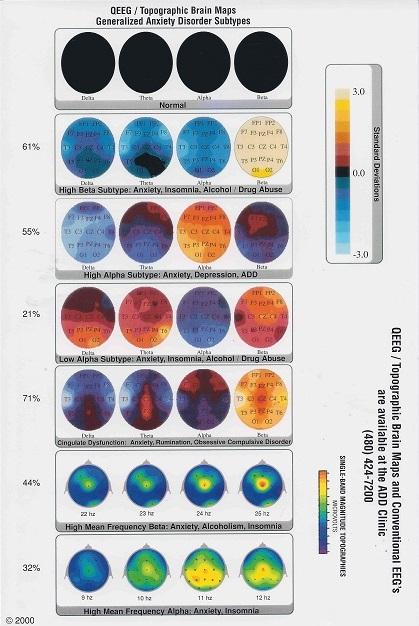 Image of the QEEG Brainmaps