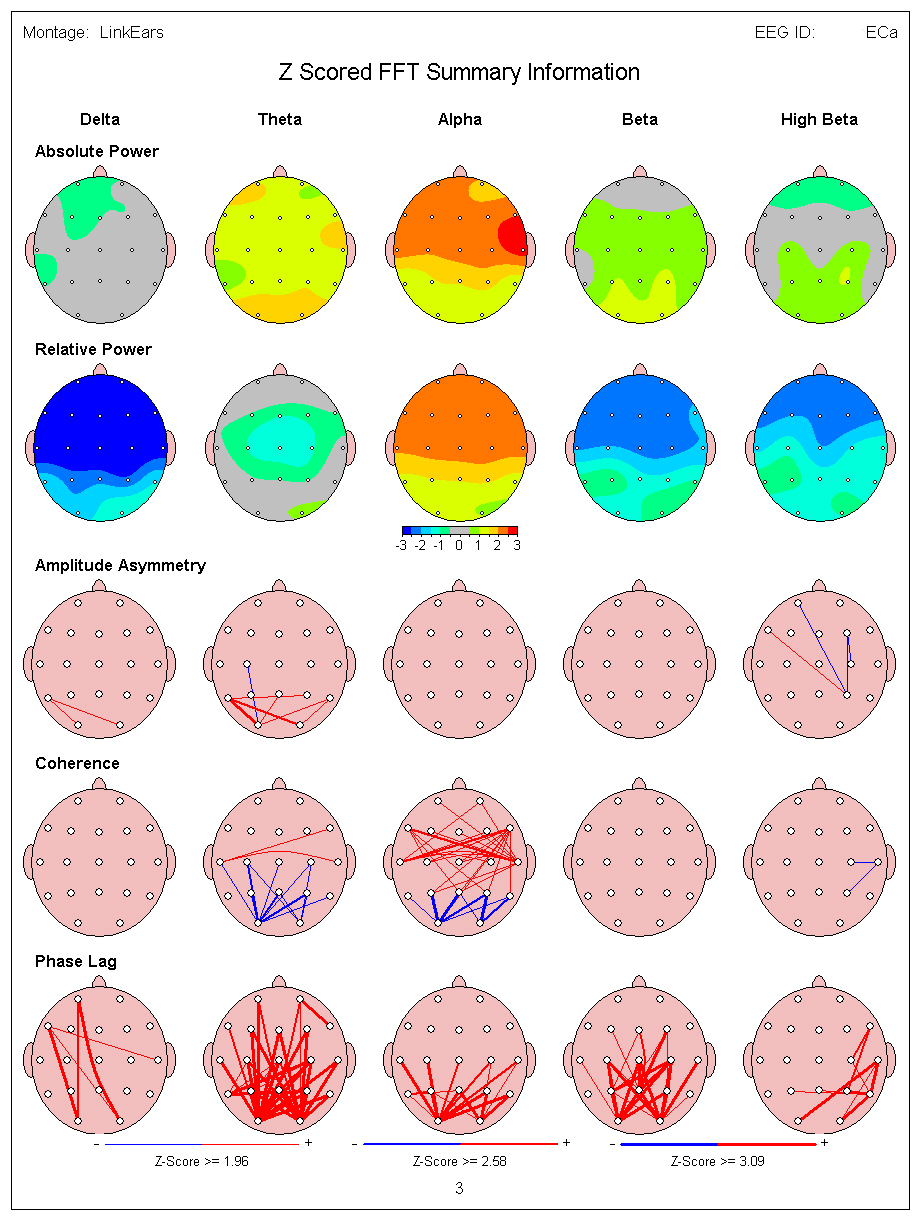QEEG in Mapping - Scottsdale Neurofeedback Institute, AZ Qeeg In Mapping Cost on
